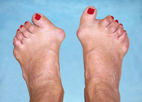 что ревматоидный артрит стоп ног фото невозможно
